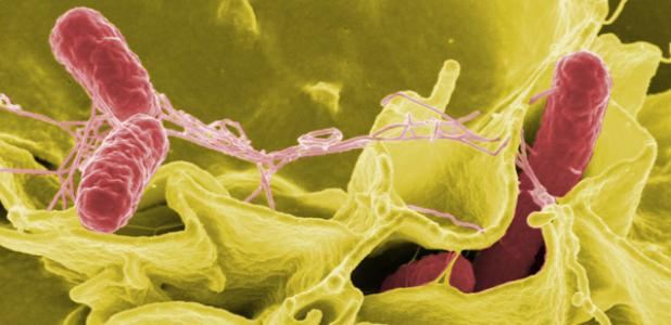 A color-enhanced typhimurium strain of salmonella (red) invades cultured human cells. The hundreds of microbes living on and in the human body have proven to be surprisingly unique.